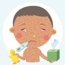 measles-child-image-250-250